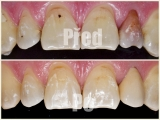 Rekonstrukce zabarveného zubu