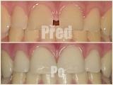 Uzávěr mezery mezi zuby